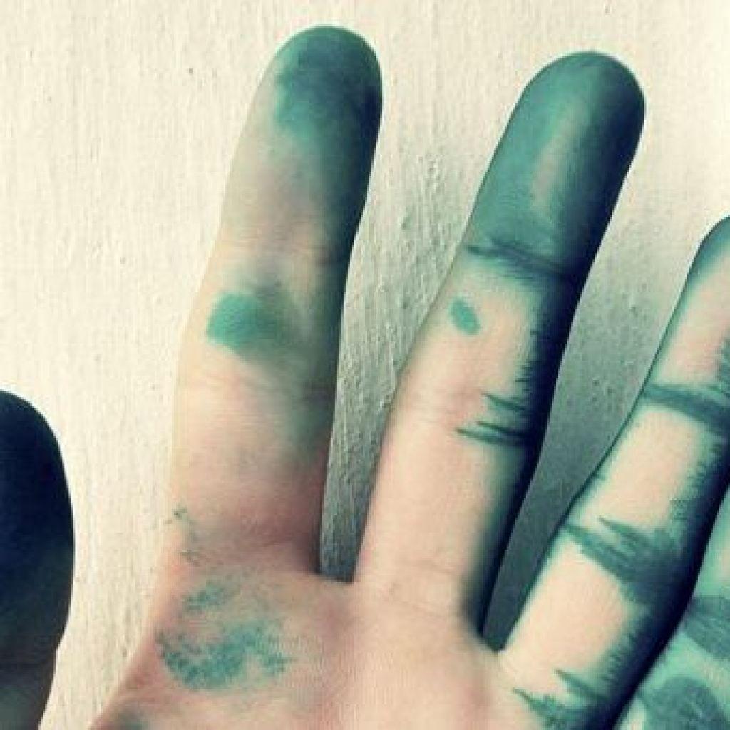 Чем быстро отмыть зеленку с кожи в домашних условиях