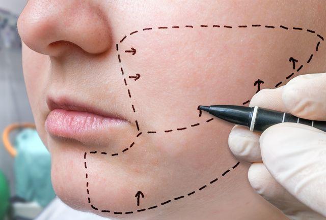 Чем стереть маркер с кожи